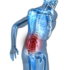 Learning to Cope with Sciatica